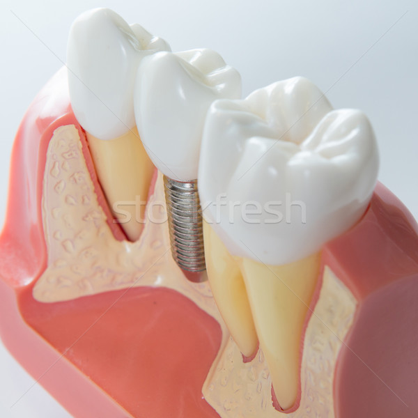 Dental implant Stock photo © sarymsakov