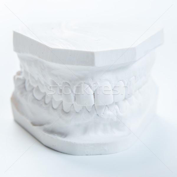 石こう モデル 人間 顎 白 歯科 ストックフォト © sarymsakov