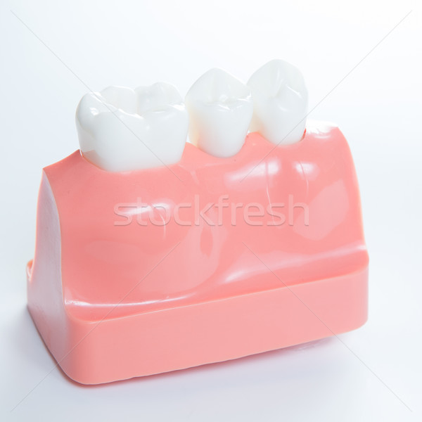 Close up of a Dental  implant model.  Stock photo © sarymsakov