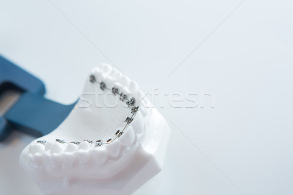 Dental lower jaw bracket braces model on white Stock photo © sarymsakov