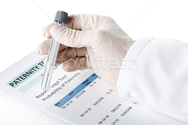 Paternidad prueba resultado forma médico Foto stock © ShawnHempel
