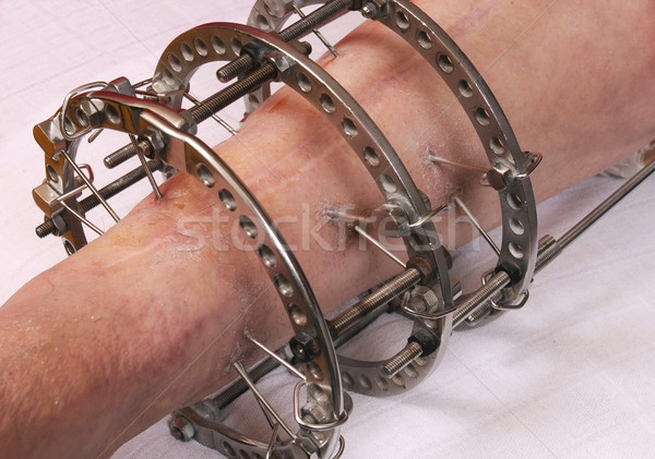 Orthopaedics Stock photo © simazoran