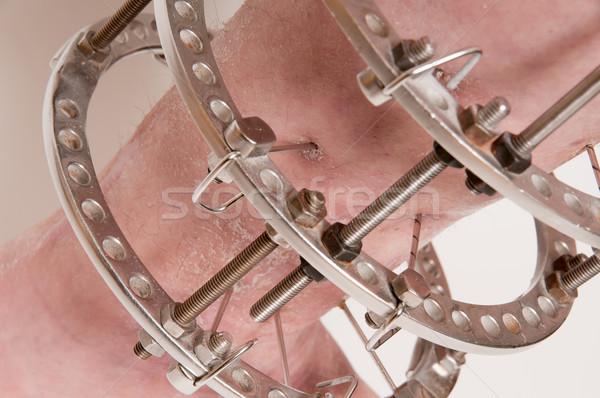 Ortopedico anello medicina medici salute pelle Foto d'archivio © simazoran