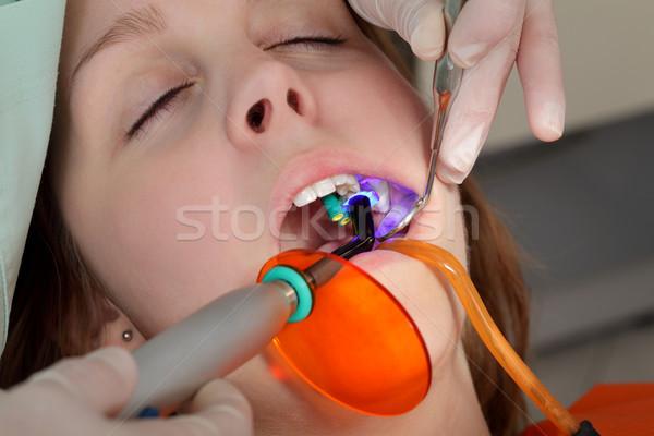 Diş lazer dişçi uv ışık Stok fotoğraf © simazoran
