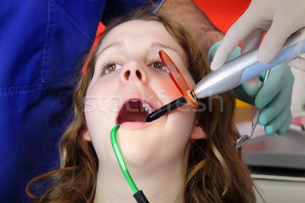 Diş dişçi asistan uv doktor çalışmak Stok fotoğraf © simazoran