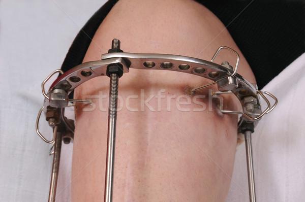 リング 固定 整形外科の 薬 皮膚 鋼 ストックフォト © simazoran