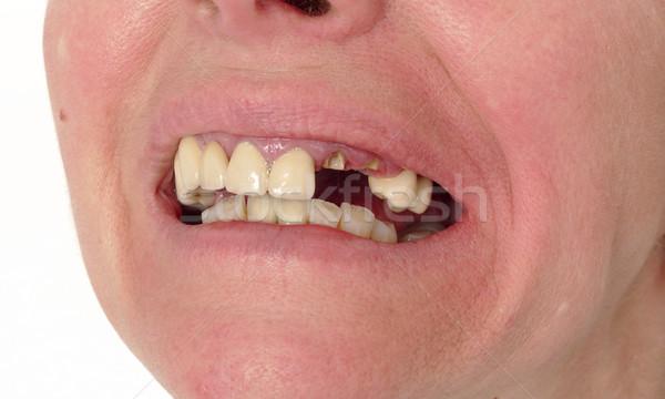 Dental care, broken teeth Stock photo © simazoran