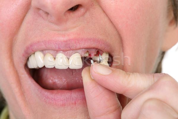 Dental Stock photo © simazoran