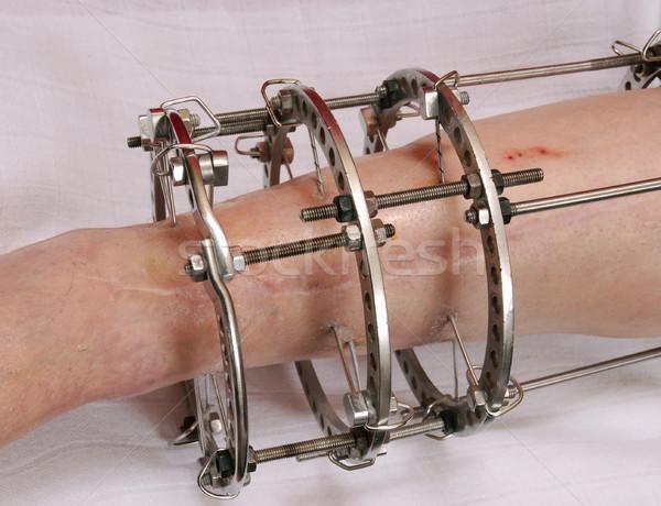 Anello fissazione ortopedico medicina pelle acciaio Foto d'archivio © simazoran