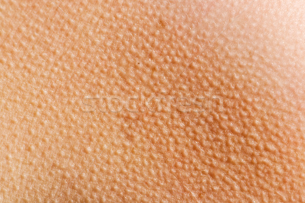 Goosebumps Skin Background Stock photo © SimpleFoto