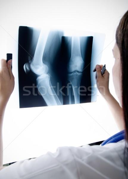 Arzt schauen xray Bild Knie Krankenhaus Stock foto © simpson33