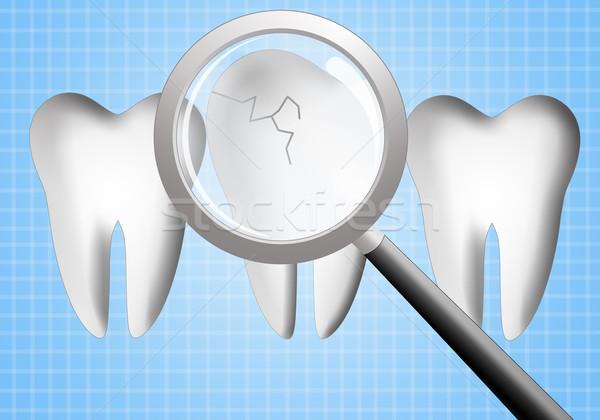Dişler diş bakımı örnek gülümseme doktor tıp Stok fotoğraf © sognolucido