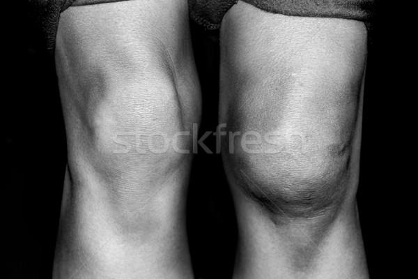 Gescheurd knie zwart wit foto gewond Stockfoto © soupstock