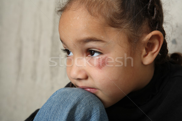 Child abuse Stock photo © soupstock