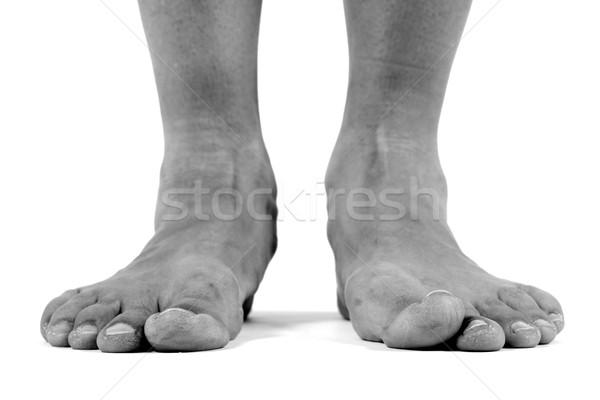 Ayaklar siyah beyaz görüntü sağlık ayak ağrı Stok fotoğraf © soupstock