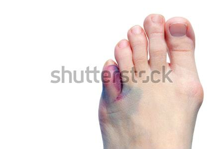 Bruises, bunions  and broken toes Stock photo © soupstock