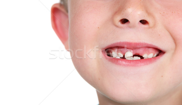 Close up of a young boy who is missing a tooth Stock photo © soupstock