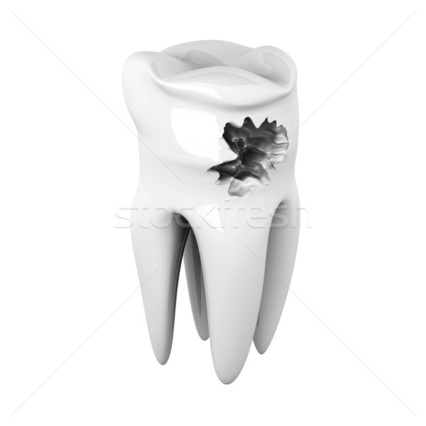 Caries Stock photo © Spectral