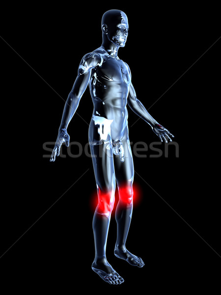 Knee Ache - Anatomy 	 Stock photo © Spectral