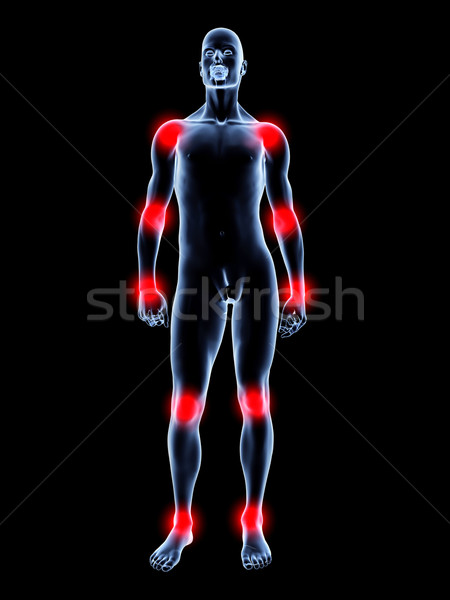 Stock photo: Joint ache - Anatomy