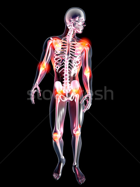 Anatomie douloureux joints 3D rendu illustration Photo stock © Spectral