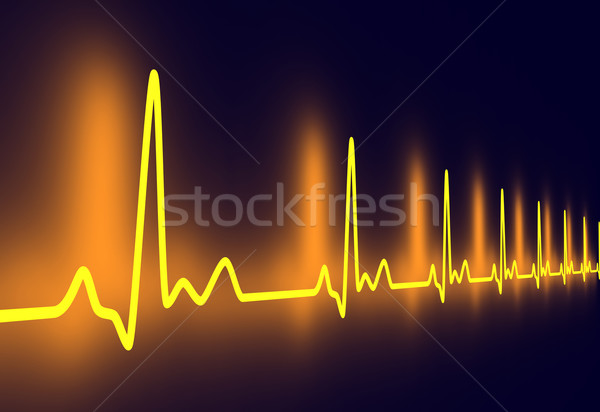 Pulse trace