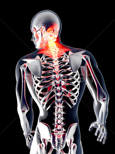 Anatomy - Back Pain	 Stock photo © Spectral