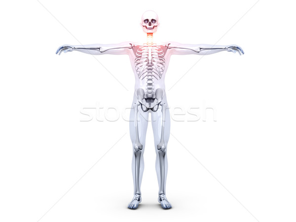 Sore Throat - Anatomy 	 Stock photo © Spectral