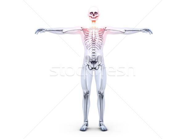 Garganta inflamada anatomia 3D prestados ilustração natureza Foto stock © Spectral