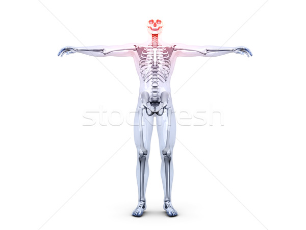 Headache - Anatomy 	 Stock photo © Spectral