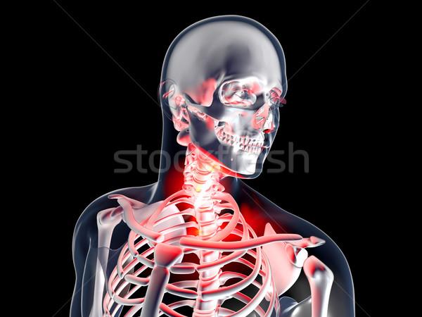 Garganta inflamada anatomia 3D prestados ilustração isolado Foto stock © Spectral