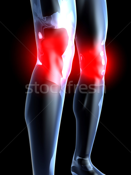 Stock photo: Knee Ache - Anatomy