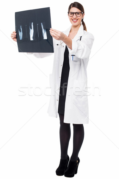 Female doctor reviewing patient's x-ray report Stock photo © stockyimages