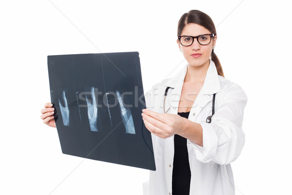 Serious faced female doctor holding up x-ray Stock photo © stockyimages