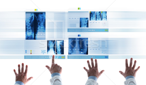 Medical team examining patient's medical records on slides Stock photo © stokkete