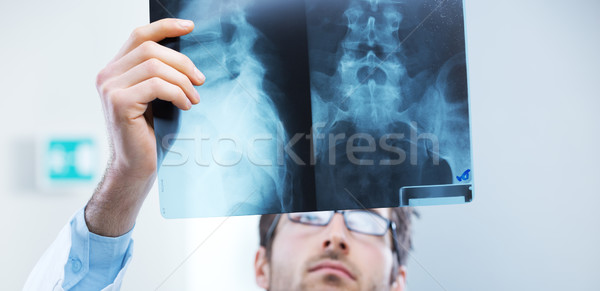 Radiológus vizsga profi megvizsgál röntgen kép Stock fotó © stokkete