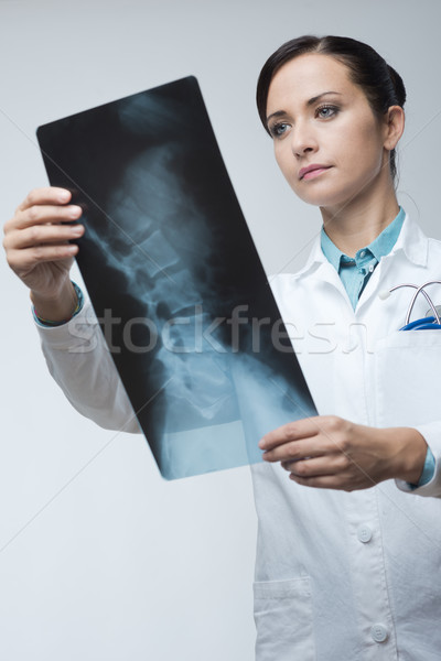 Female radiologist checking x-ray image Stock photo © stokkete