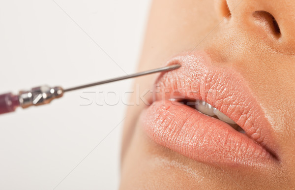 Lip Enhancement Treatment Stock photo © stryjek