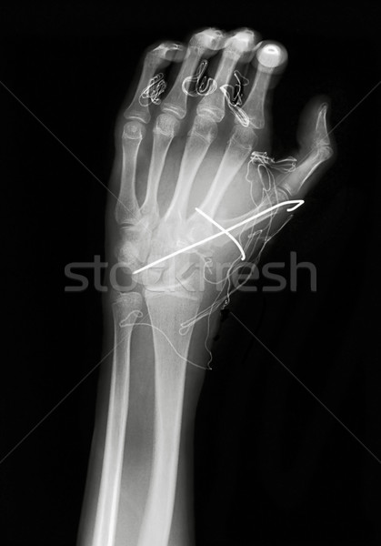 X ray image of hand Stock photo © Suljo