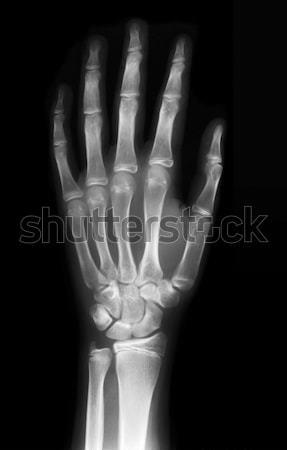 Left hand Stock photo © Suljo