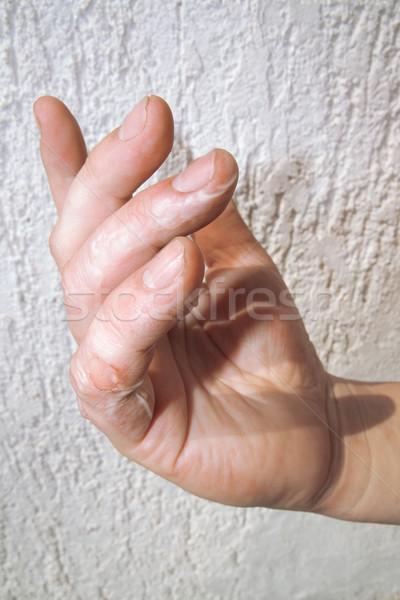 Scald on Fingers Stock photo © Suljo