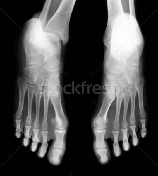 Láb láb ujjak védtelen röntgen feketefehér Stock fotó © Suljo