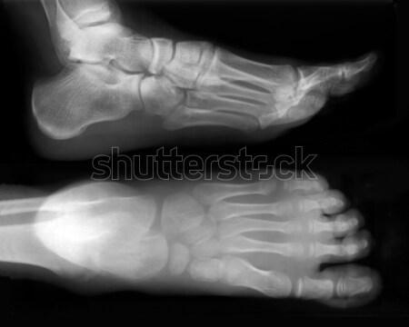 Foot-X-Ray Stock photo © Suljo