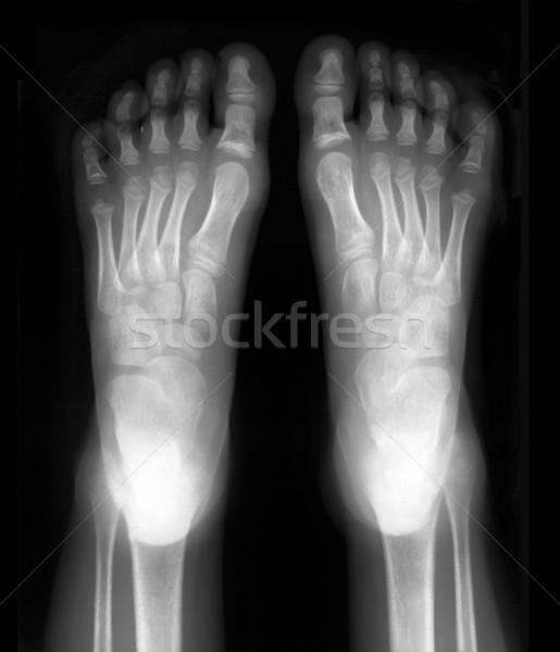 ногу пальцы Xray черно белые фильма Сток-фото © Suljo