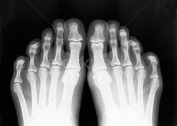 Láb ujjak védtelen röntgen feketefehér film Stock fotó © Suljo