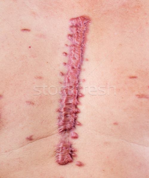 hypertrophic scar Stock photo © supersaiyan3
