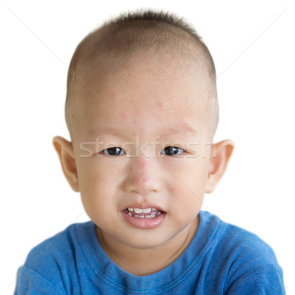 Toddler with red rashes on face Stock photo © szefei