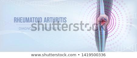 Schmerzen Erleichterung Werbung Banner Vektor Erzeugnis Stock foto © pikepicture