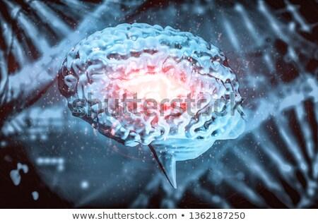 Cerebral Infarction. Medicine. 3D Illustration. Stock photo © tashatuvango