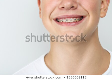 Young Man with Braces Stock photo © piedmontphoto